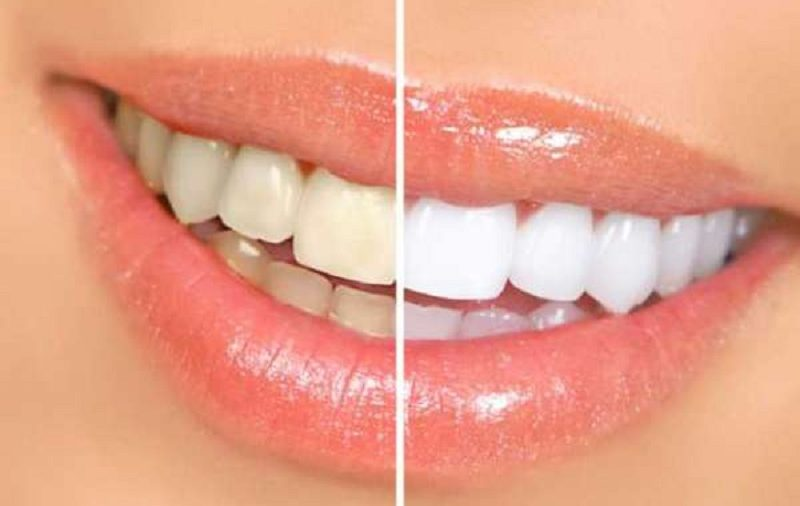 Facing Yellow Teeth Problem? Here Is How to Fix It