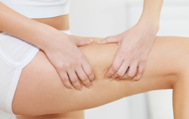 Cellulite – What Are Causes & Treatments?