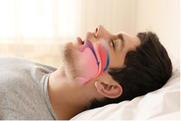 How To Recognize A Sleep Apnea And What You Can Do About It