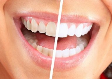 Ways To Use Professional At Home Teeth Whitening Kit